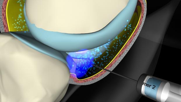 Hyaluronsäure Gelenk